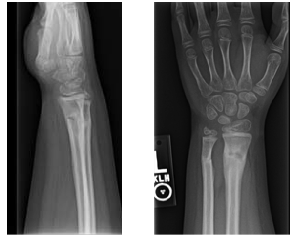 Pediatric Wrist Fractures
